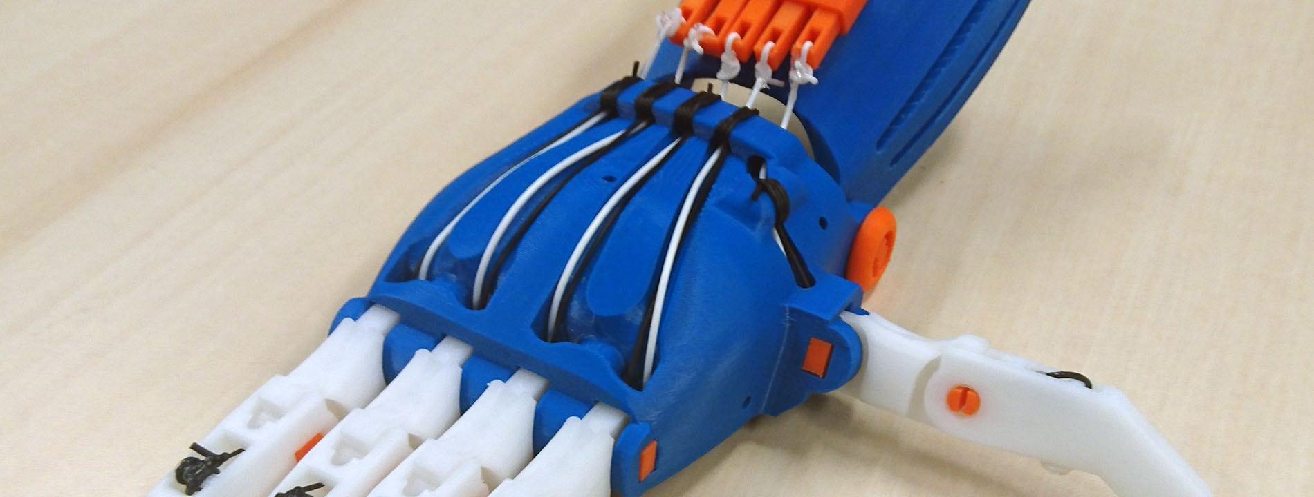 prothèse main impression 3D